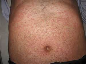leukemia and skin picture 3