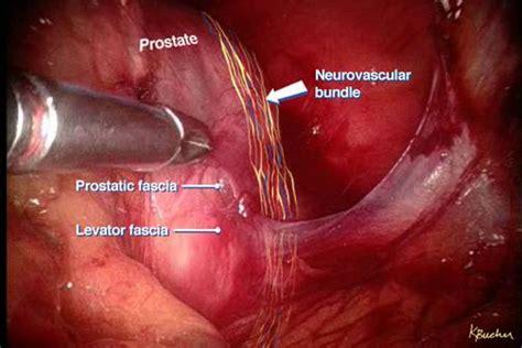 list best prostate surgeons picture 6