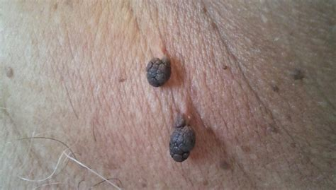 skin tag removal picture 3