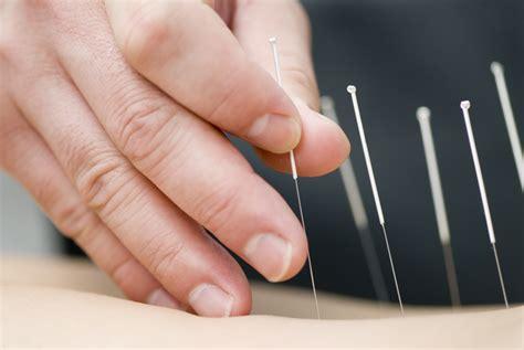 acupuncture picture 2