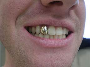 gold and silver teeth picture 2