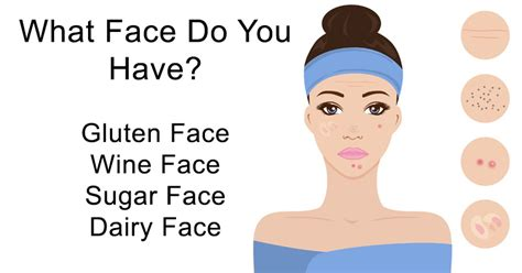 natural remedies for acne picture 9