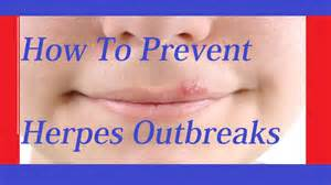 herpes how to stop outbreak picture 15