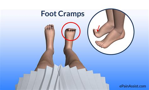 foot and leg muscle cramps picture 11