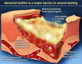bacterial biofilms picture 10