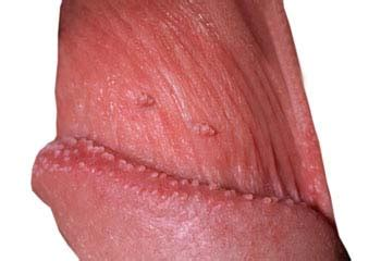 what is genital warts picture 11