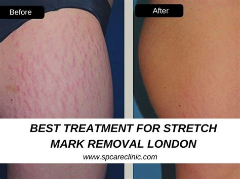 stretch mark removal in san diego picture 2