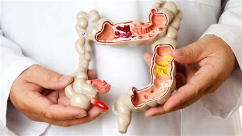 irritable bowels picture 10