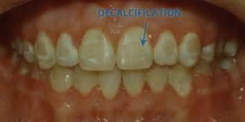 calcium spot teeth picture 17