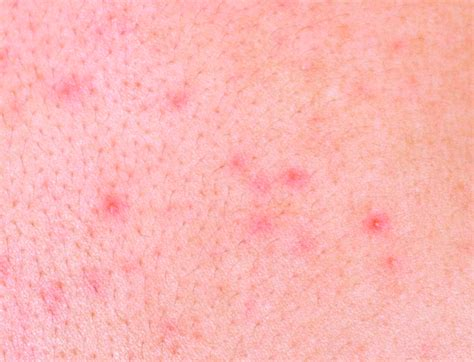 allergic reaction skin rashes picture 3