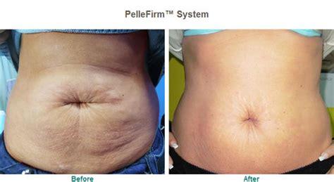 pellefirm skin tightening reviews picture 2