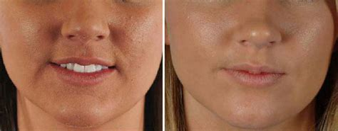co2 laser for acne scars picture 11