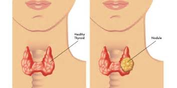can a heterogenous thyroid be cancerous picture 1