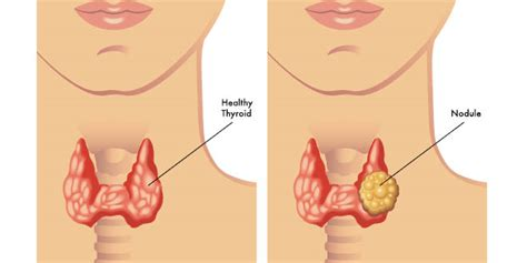 weight loss and gallbladder disease picture 11