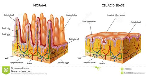 intestinal mucosal dysfunction picture 3