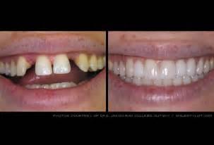 false teeth permenant picture 14