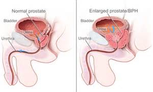 What causes an enlarged prostate picture 7