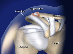 arthritis of the ac joint of the shoulder picture 6