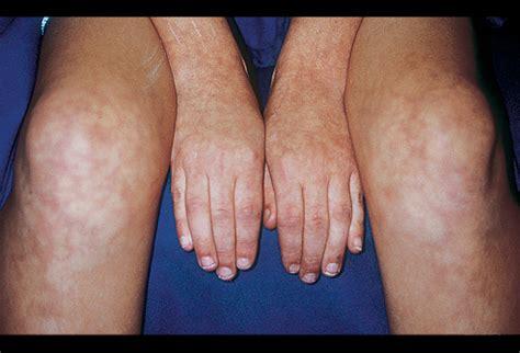 skin rash livedo picture 18