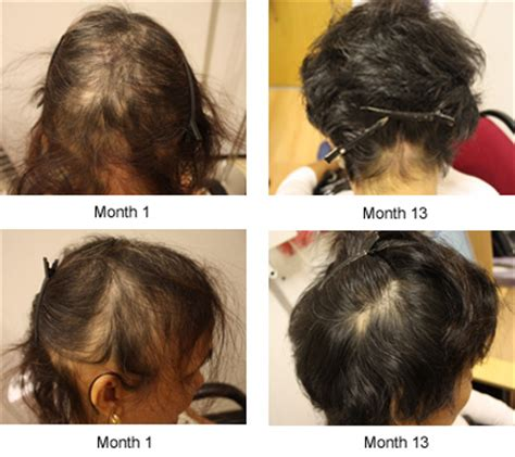 cortisone injections & hair loss picture 13