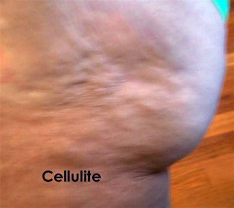 cellulite picture 13