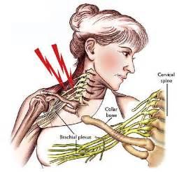 lymph node arm tingle tingling asleep picture 14