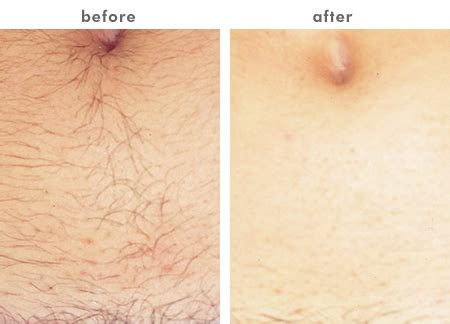 lazer hair removal picture 6