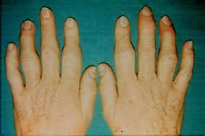 what causes joint pain in the fingers great picture 9