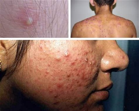 cleanse and pimple on vagina picture 11