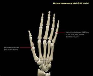 injury proximal phalanges metacarpal phalangeal joint picture 6