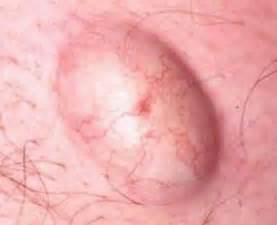 painful lump at base of penis picture 7