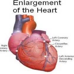enlarged heart and hypothyroidism picture 3