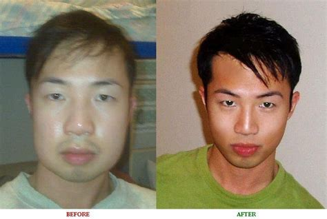 male enhancement before after pictures picture 7