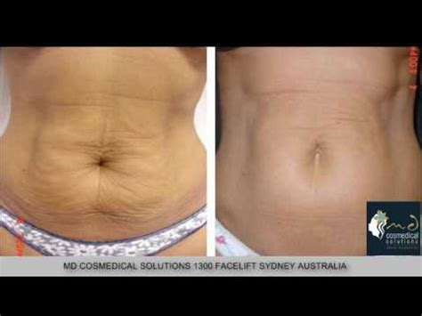 fraxel stretch mark removal photos picture 14