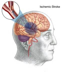 el ischemia picture 5