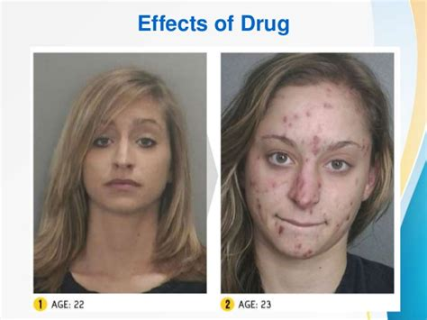 drug overuse consequences picture 13