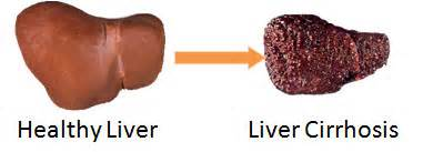 liver with cirrhosis picture 6