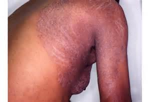 lamisil skin rash picture 2