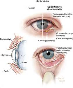 viral or bacterial conjunctivitis picture 2