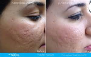 microneedling before and after picture 2