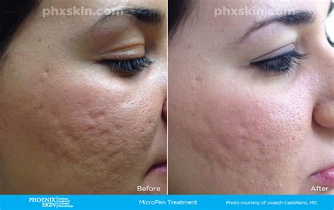 skin needling reviews picture 2