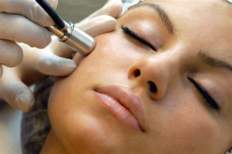 dermabrasion and asian skin picture 2