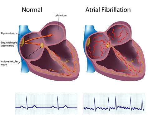 atrial fibrillation and cigar smoking picture 11