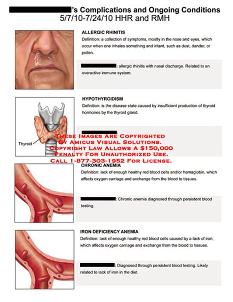 can hypothyroidism cause anemia picture 1