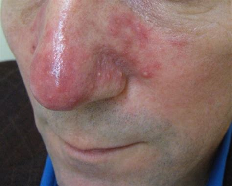 causes of adult acne picture 11