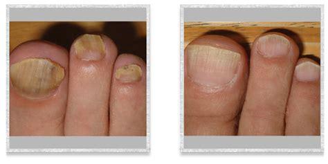 foot fungus laser treatment in ohio picture 17