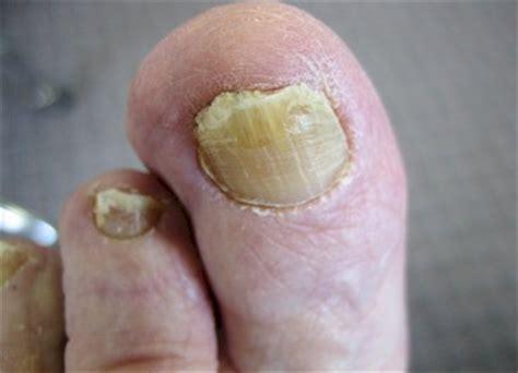 common causes of toenail fungus picture 15