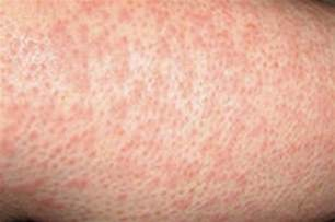 picture dictionary of skin rashes picture 5