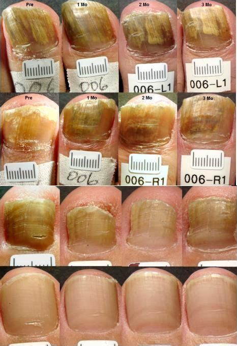 can toe nail fungus goaway picture 15