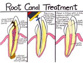 tooth pain nerve inflammation picture 5